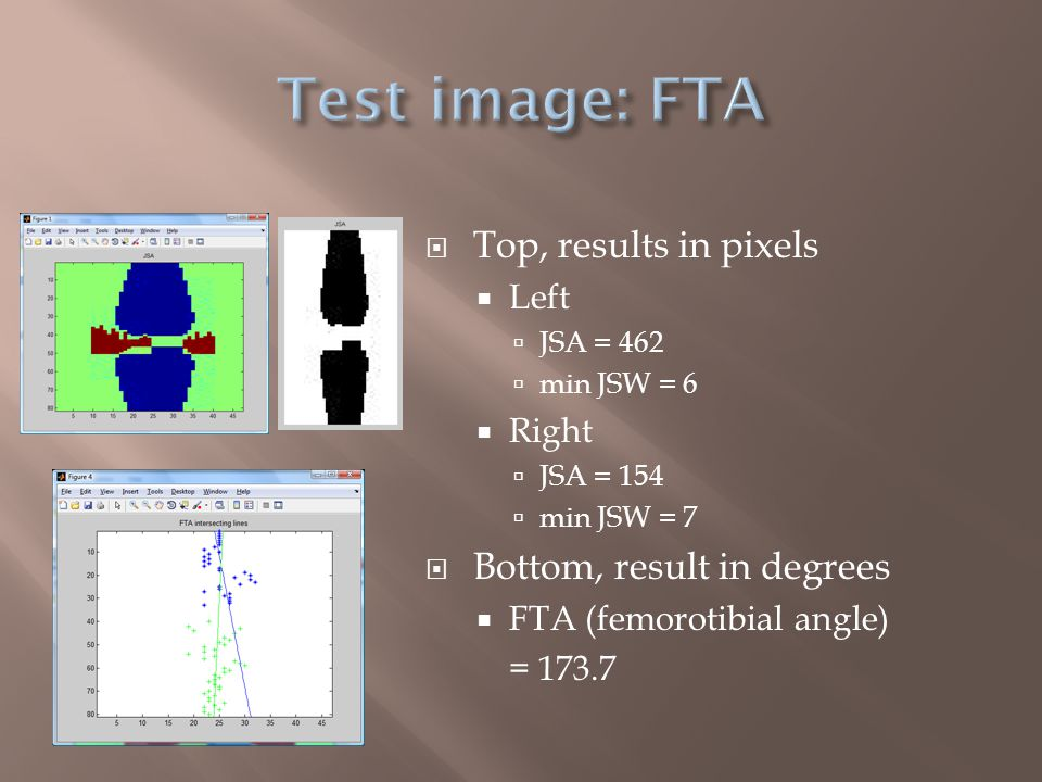  Horizontal difference filter  User control  Intensity threshold  Medial regression lines  Femur – blue  Tibia – green