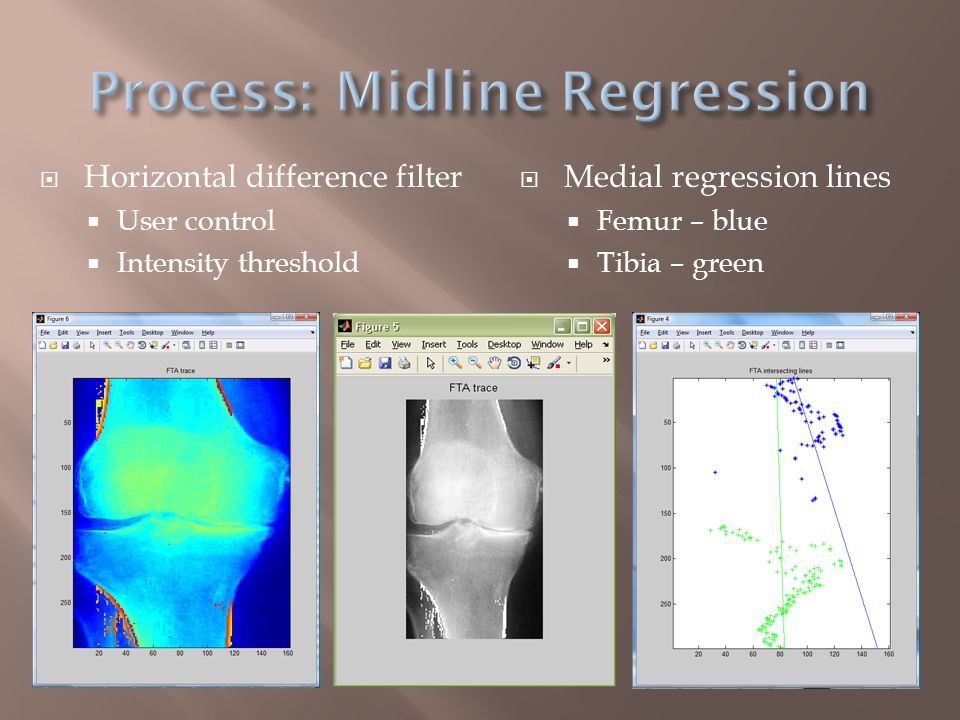  Regression lines  Slope m  m1 – Femur, blue  m2 – Tibia, green  tan(FTA) = (m1 – m2) (1 + m1*m2)  FTA = 169.4 degrees  Same limitations as JSA  Intensity distribution  Highly variable