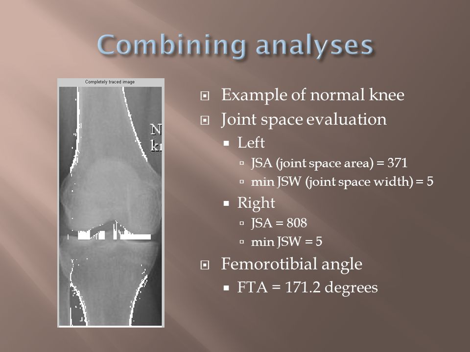  Osteoarthritic knee  Right joint space undetectable  Joint space evaluation  Left  JSA (joint space area) = 884  min JSW (joint space width) = 7  Right  JSA = 19  min JSW = 7  Femorotibial angle  FTA = 169.4 degrees