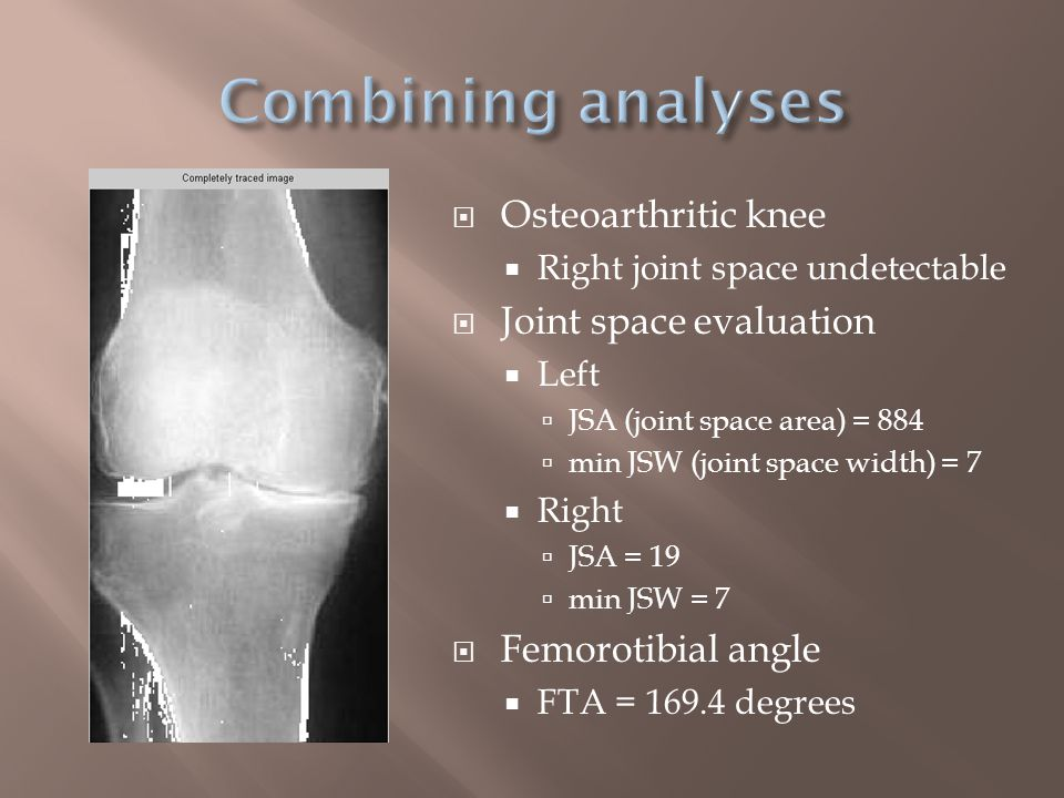  Numerical comparison of 2D x-rays  Osteoarthritic mJSW and JSA pixel values  FTA – angle of joint bones possible sign of osteoarthritis  Future improvements  Osteophyte area, as done in KOACAD  Image quality  Intensity distribution  Background signals  Automation  Filtering  Threshold detection  Atlas mapping  Compare with 3D imaging