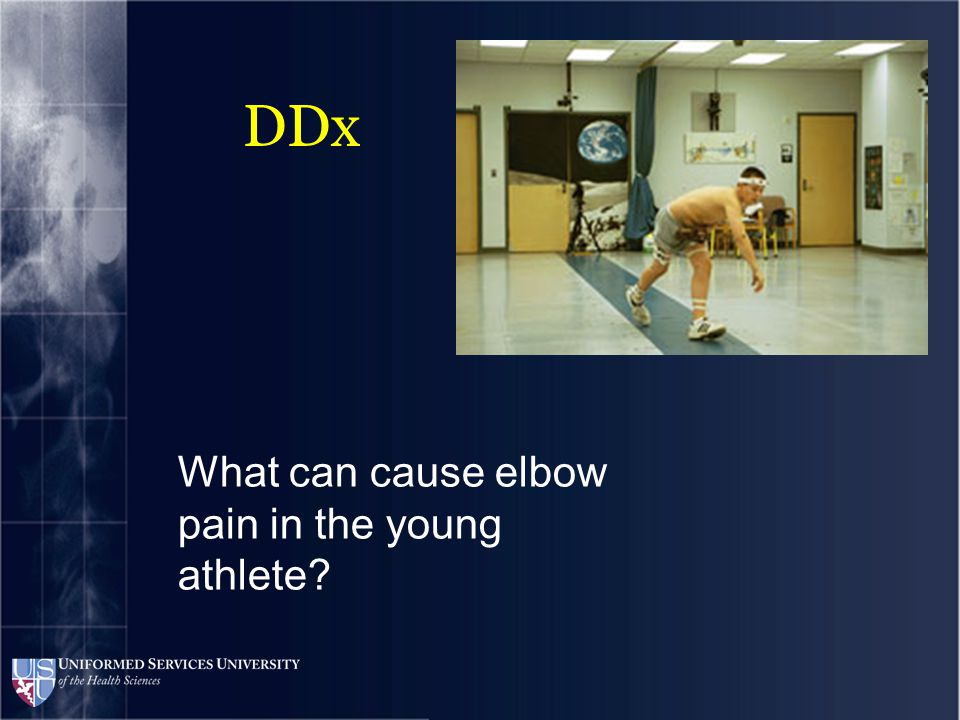 DDx What can cause elbow pain in the young athlete? UCL sprain/tear