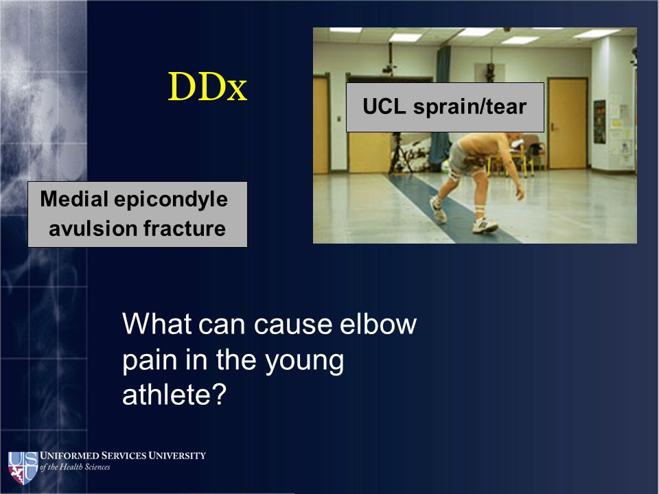 DDx What can cause elbow pain in the young athlete.
