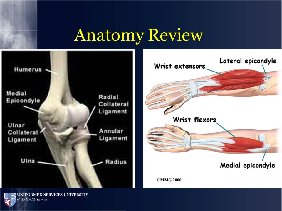 Throwing creates predictable force loads across the elbow –Medial elbow traction –Lateral elbow compression –Translational forces across the humerus and olecranon