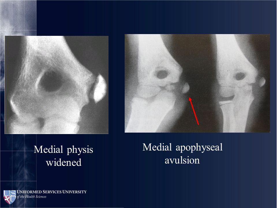 Osteochondritis of capitellum and loose bodies Loose bodies seen arthroscopically