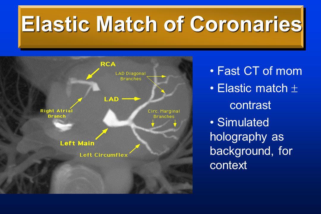 Coronary Sinus Rx