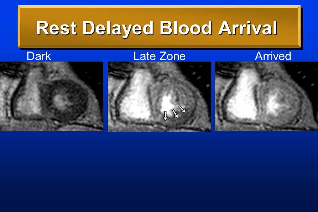Space-Time Map We introduced Space- Time Maps to see delay in blood arrival in a single derived image