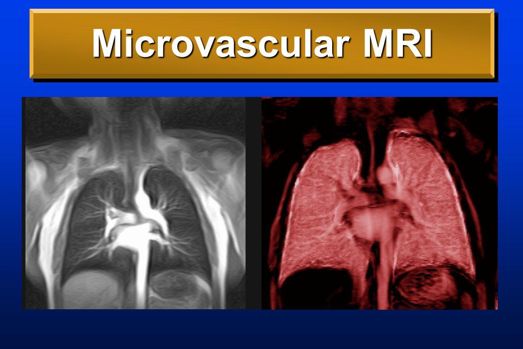 Angiogenesis-Sensitive MRI No contrastDark Flash3D CT Validation r=.95 Acad Rad 4:680 '97 Nat Med 1:1085 '95 Radiology 214:801 '00