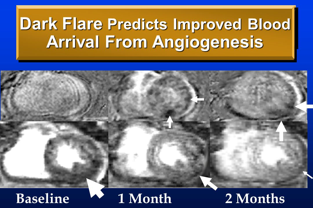 Dark Flare/Delayed Arrival Combined First Dose-Response for Angiogenesis Rx DA=Demand, CX=Response