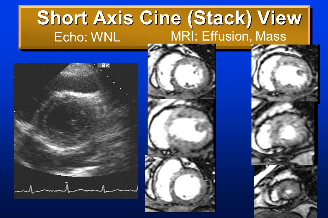 Short Axis Stack Cine