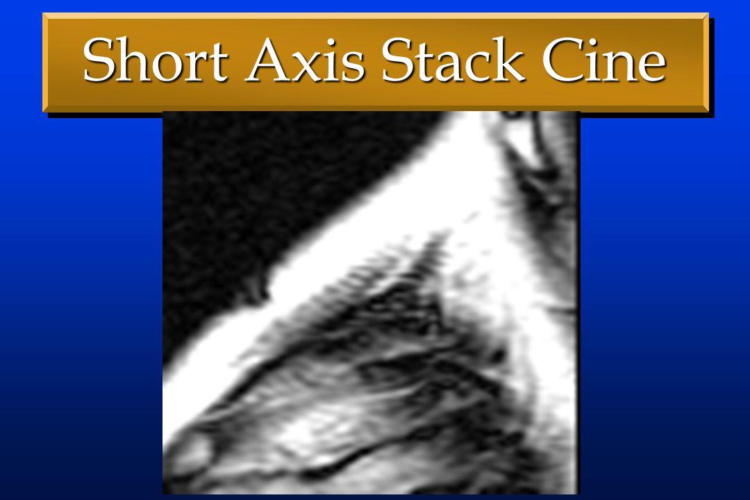 Clinical Example 63 y.o. Woman63 y.o. Woman Paroxysmal Atrial FibParoxysmal Atrial Fib