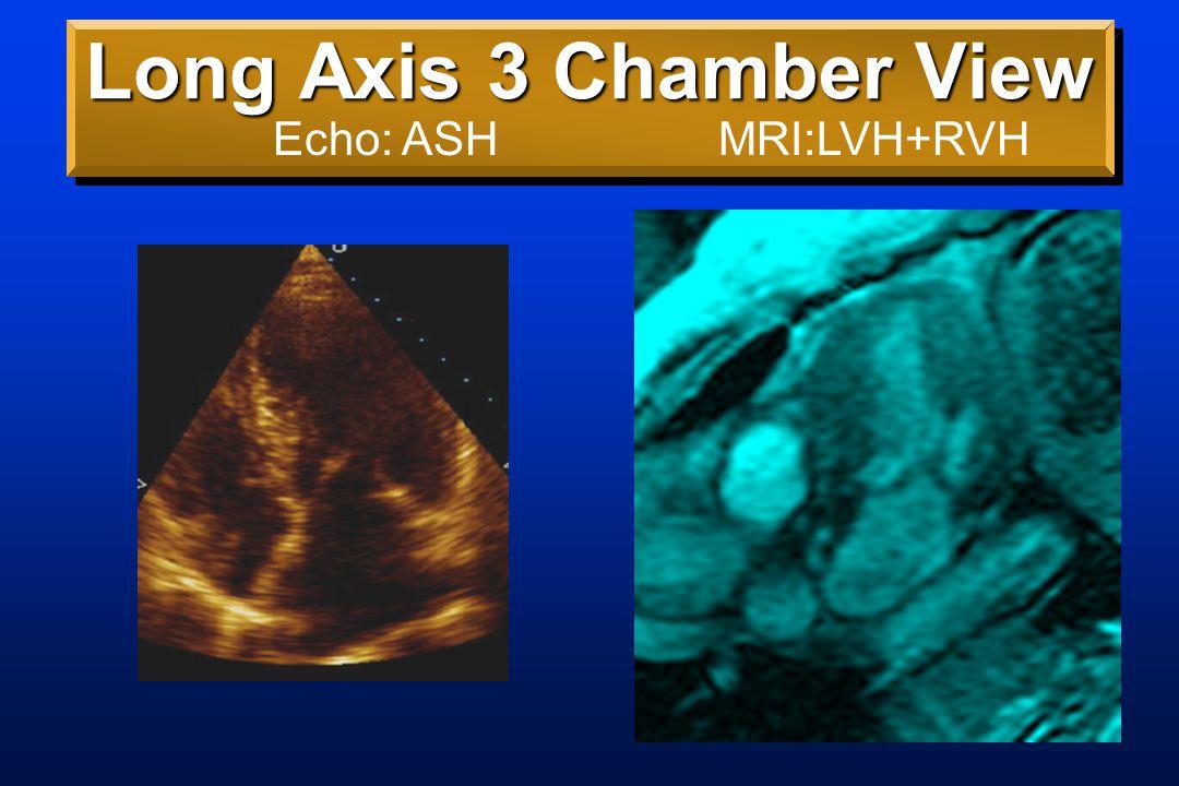 Long Axis 4 Chamber View Echo: ASH; lung/RVMRI: LVH+RVH