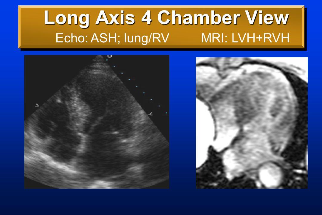 Long Axis 5 Chamber View Echo: ASH MRI: LVH+RVH