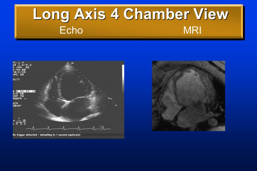 Long Axis 5 Chamber View Echo: ?Good EFMRI: EF 11%