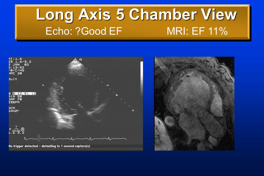 Long Axis Rotating Views MRI: DCM,  CS,  IVC