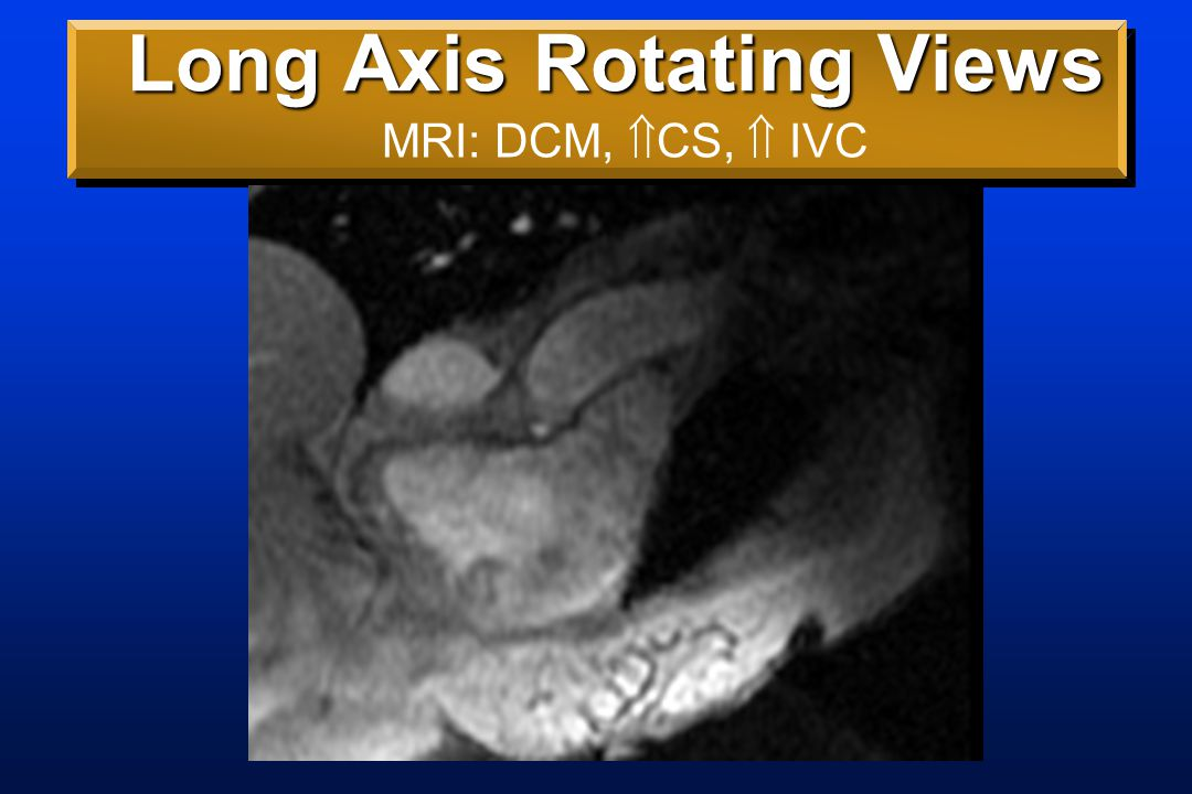 Short Axis ( Grid Tag Stack) View Echo: Low EF ?Constriction MRI: DCM, No constriction