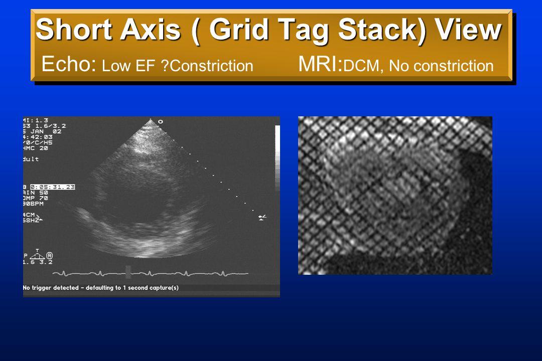 Clinical Example 60 y.o.Woman s/p L Mastectomy, XRT60 y.o.