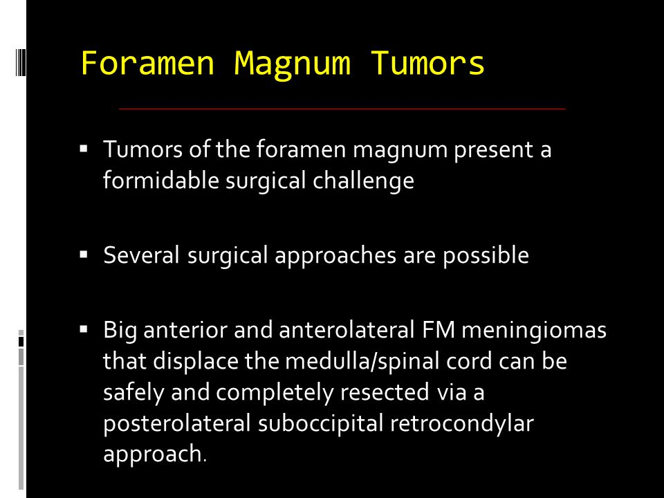  Resection of the occipital condyle should be tailored to individual cases  Small anterior or intra extradural tumors could be operated by an extreme lateral approach  Postoperative complications can be dramatic and must be anticipated Foramen Magnum Meningiomas