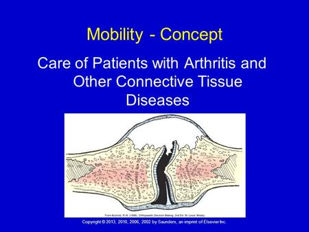 Copyright © 2013, 2010, 2006, 2002 by Saunders, an imprint of Elsevier Inc. 1 Mobility - Concept Care of Patients with Arthritis and Other Connective Tissue.