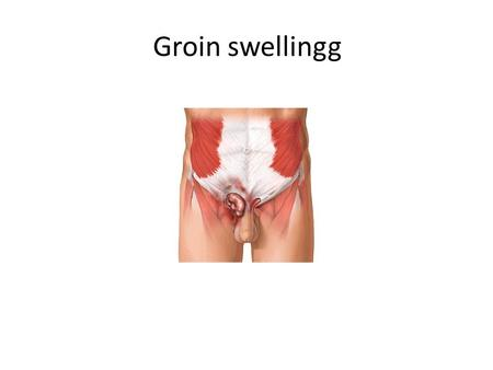 Groin swellingg. Groin swelling History : when the lump 1 st notice ? what are the symptom related to lump? Has lump change ? in size,shape,color since.