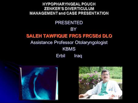 HYPOPHARYNGEAL POUCH ZENKER'S DIVERTICULUM MANAGEMENT and CASE PRESENTATION PRESENTED BY BY SALEH TAWFIQUE FRCS FRCSEd DLO Assistance Professor Otolaryngologist.