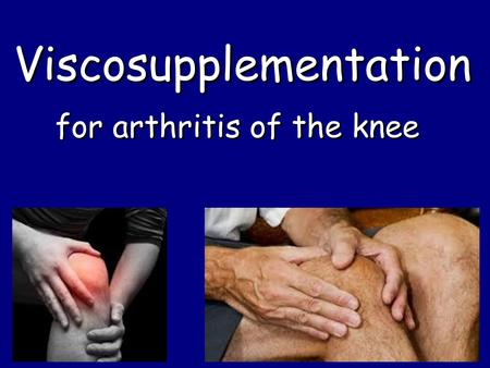 ViscosupplementationViscosupplementation for arthritis of the knee.
