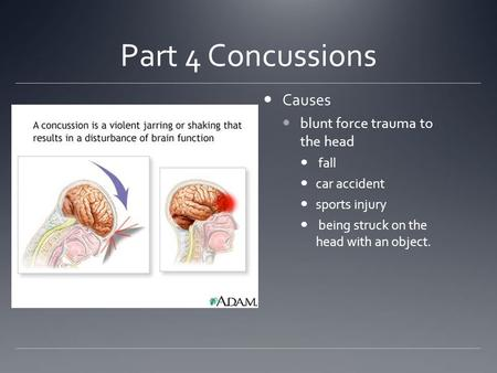 Part 4 Concussions Causes blunt force trauma to the head fall car accident sports injury being struck on the head with an object.
