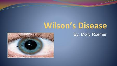 Wilson's Disease By: Molly Roemer.