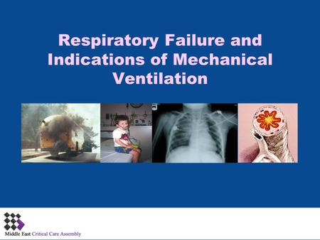 Respiratory Failure and Indications of Mechanical Ventilation 1.