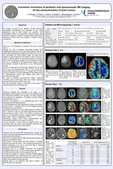 Correlation and fusion of perfusion and spectroscopic MR imaging for the characterisation of brain tumors A. Förschler 1), K. Vester 1), G. Peters 2),
