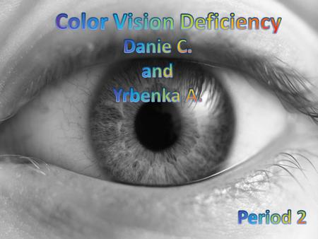 Color Vision Deficiency Is a condition where the retina (eye) is unable to distinguish colors correctly It can either affect seeing the red and green.
