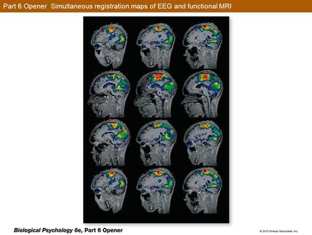 Part 6 Opener Simultaneous registration maps of EEG and functional MRI.