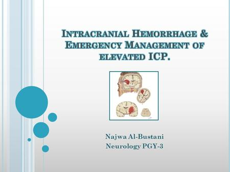 Najwa Al-Bustani Neurology PGY-3. INTRACEREBRAL HEMORRHAGE: Bleeding into the parenchyma of the brain that may extend into the ventricles and, in rare.