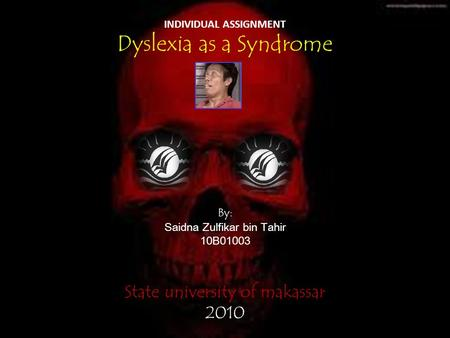 INDIVIDUAL ASSIGNMENT Dyslexia as a Syndrome By: Saidna Zulfikar bin Tahir 10B01003 State university of makassar 2010.