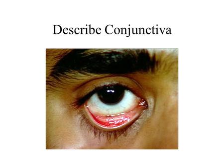 Describe Conjunctiva. Conjunctiva is translucent and clear. The pink color of palpebral conjunctiva is due to underlying vascular bed. White Sclera is.