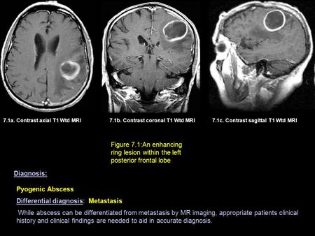 7.1a. Contrast axial T1 Wtd MRI7.1b. Contrast coronal T1 Wtd MRI Figure 7.1:An enhancing ring lesion within the left posterior frontal lobe 7.1c. Contrast.
