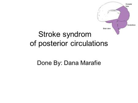Stroke syndromes of posterior circulations