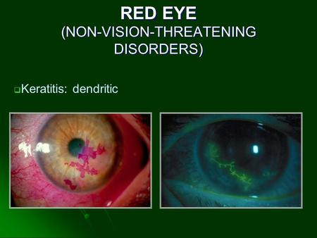 RED EYE (NON-VISION-THREATENING DISORDERS)  Keratitis: dendritic.