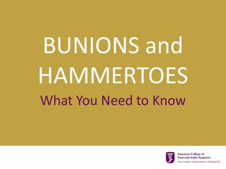 BUNIONS and HAMMERTOES What You Need to Know.  Bunions and hammertoes are very common  Many people have both Did you know…