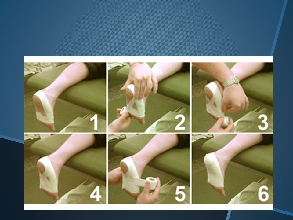 Turf Toe Taping  Turf toe, technically called a metatarsalphalangeal joint (MPJ) sprain, can occur after a forceful hyperextension (upward bending) of the big toe, causing damage to the ligaments and joint capsule.