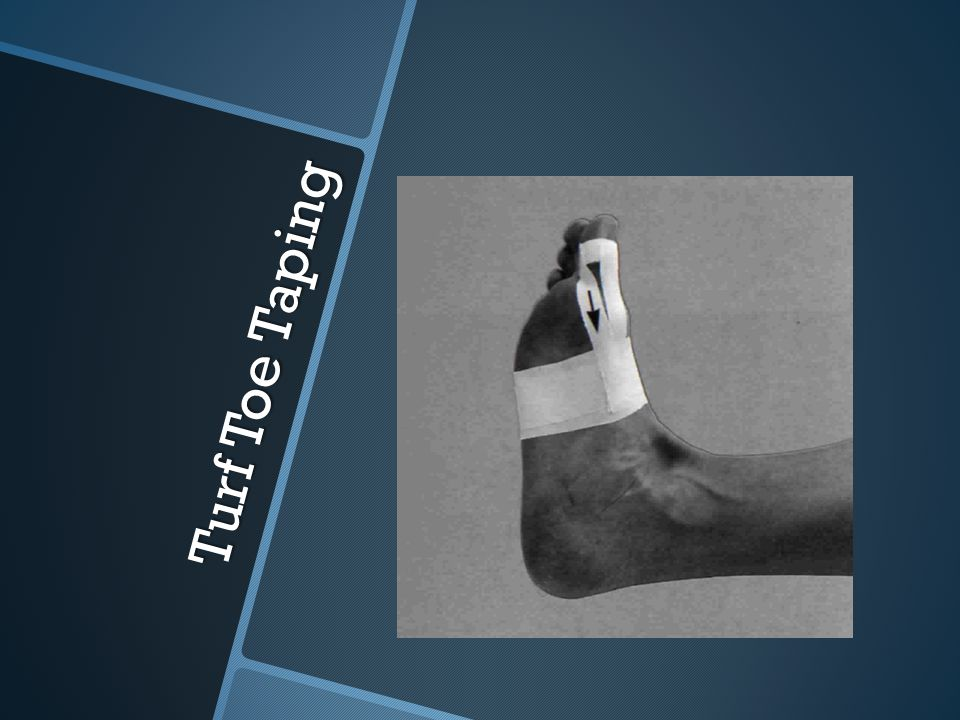 Achilles-Tendon Taping  The Achilles tendon is the largest tendon in the body, joining the lower leg gastrocnemius and soleus muscles to the heel bone (calcaneus).