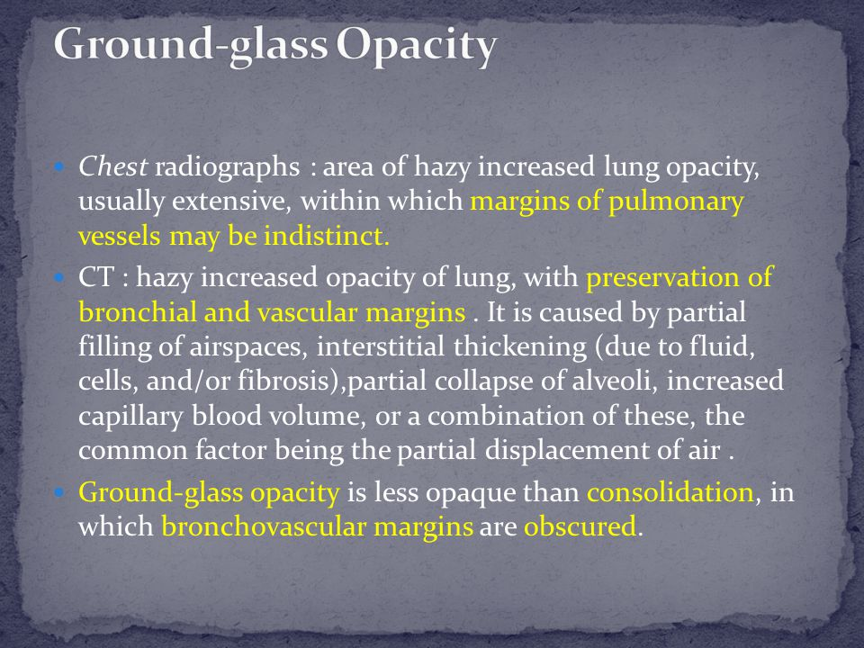 Transverse CT scan shows ground-glass opacity.Hansell D M et al.