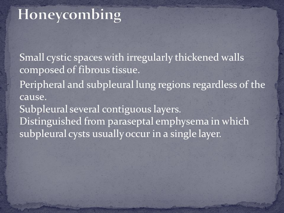 Pathology.—Honeycombing represents destroyed and fibrotic lung tissue containing numerous cystic airspaces with thick fibrous walls, representing the late stage of various lung diseases, with complete loss of acinar architecture.