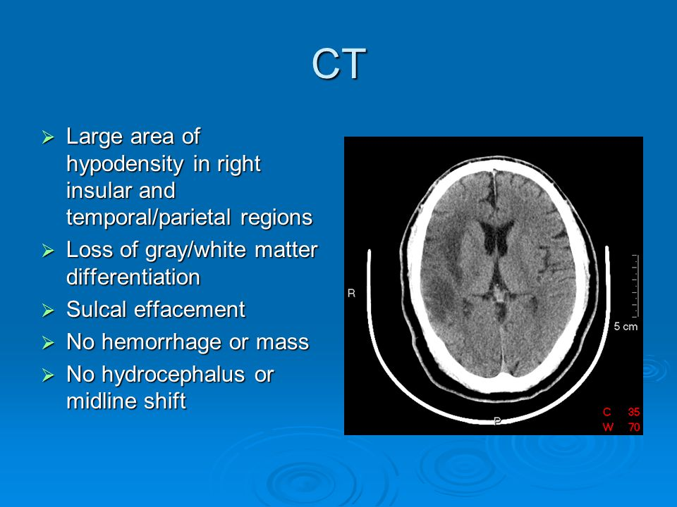 T2 FLAIR  Large area of signal abnormality in right MCA territory  No mass or extra- axial collection