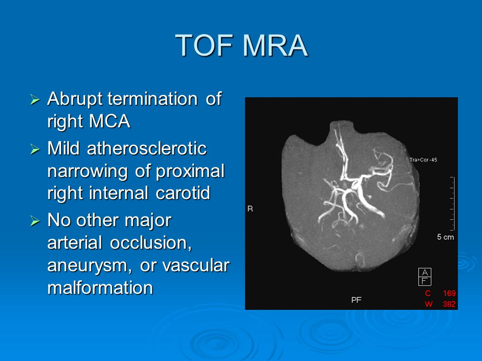 Diagnosis  Large Right Middle Cerebral Artery Infarct