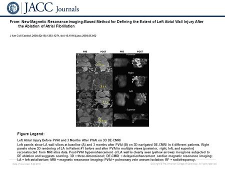 Date of download: 5/28/2016 Copyright © The American College of Cardiology. All rights reserved. From: New Magnetic Resonance Imaging-Based Method for.