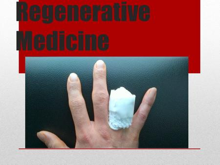 Regenerative Medicine. Overview What is Regenerative medicine? What can it do? How does it work? How does it help? What are the drawbacks? The future.