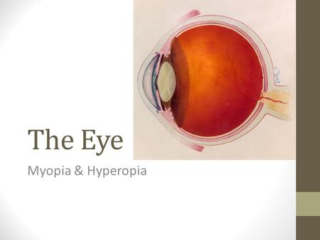 The Eye Myopia & Hyperopia. Myopia (Shortsightedness) Myopia = Shortsightedness Can see nearby objects (eg reading) Cannot see distant objects (eg blackboard)