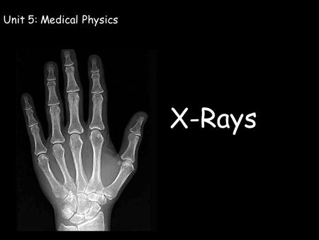 X-Rays Unit 5: Medical Physics. OCR Specification Learning Outcomes: Describe the nature of x-rays Describe how x-rays are produced Describe how x-rays.