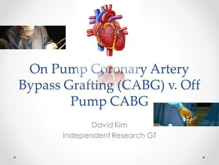 On Pump Coronary Artery Bypass Grafting (CABG) v. Off Pump CABG David Kim Independent Research GT.