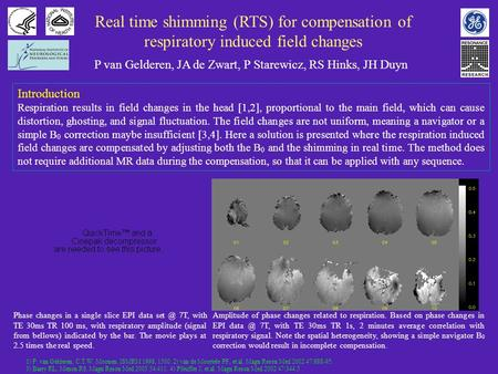 Real time shimming (RTS) for compensation of respiratory induced field changes P van Gelderen, JA de Zwart, P Starewicz, RS Hinks, JH Duyn Introduction.
